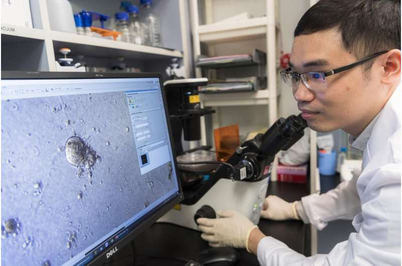 CityU biologists discover super-enhancers that switch on breast cancer genes