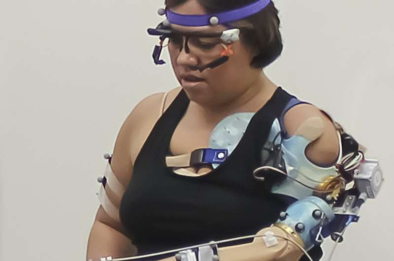 Cleveland Clinic researchers develop bionic arm that restores natural behaviors in patients with upper limb amputations