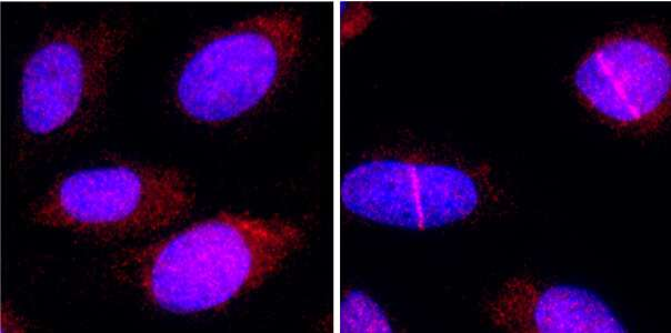 CNIO researchers discover that a protein that facilitates DNA repair may potentiate chemotherapy
