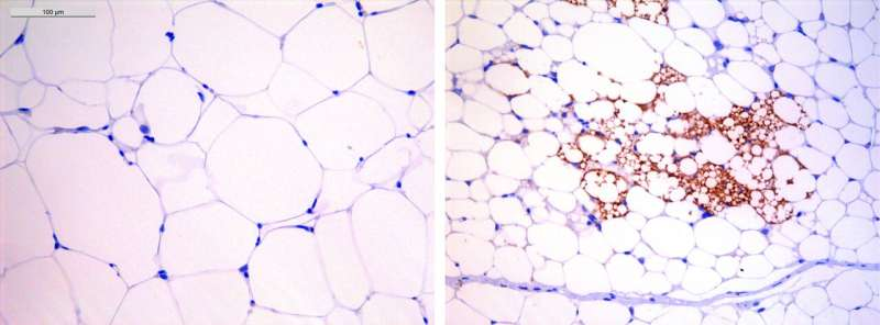 CNIO researchers discover that a drug already in use in humans corrects obesity in mice