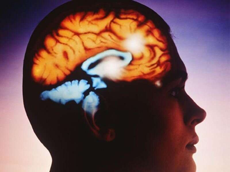 Cognitive, functional decline detected prior to stroke