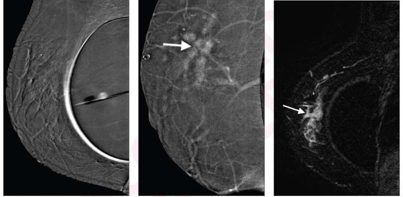 Contrast-enhanced mammography for breast cancer in women with augmented breasts