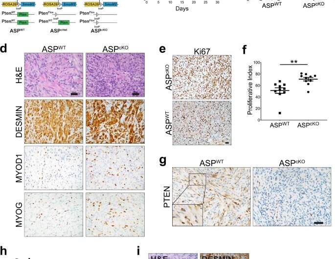 Control of rhabdomyosarcoma cell identity provides clues to possible treatments