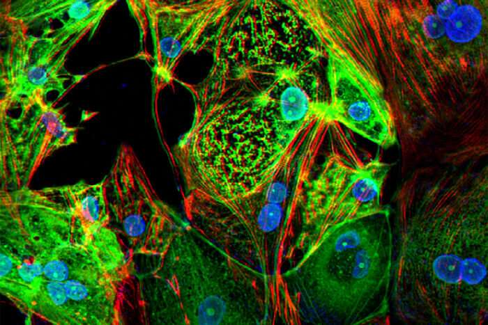 COVID-19 can kill heart muscle cells, interfere with contraction