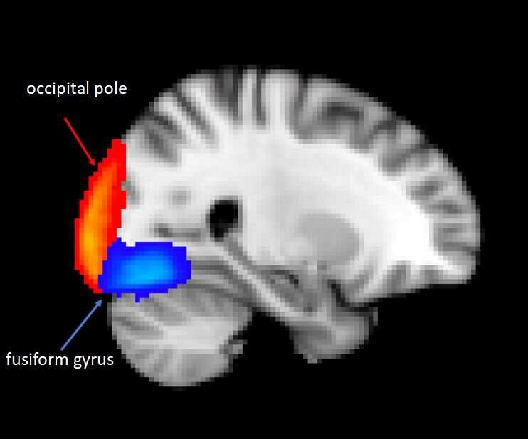 Depressed adolescents' brains shown to mute distressing information