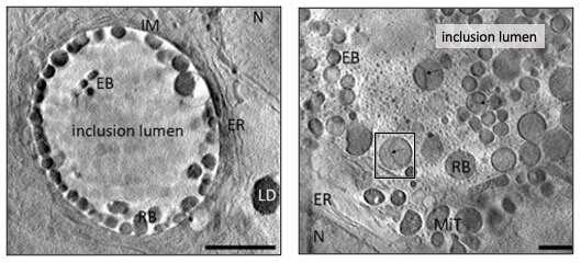 Diamond peers inside cells hosting Chlamydiae bacteria