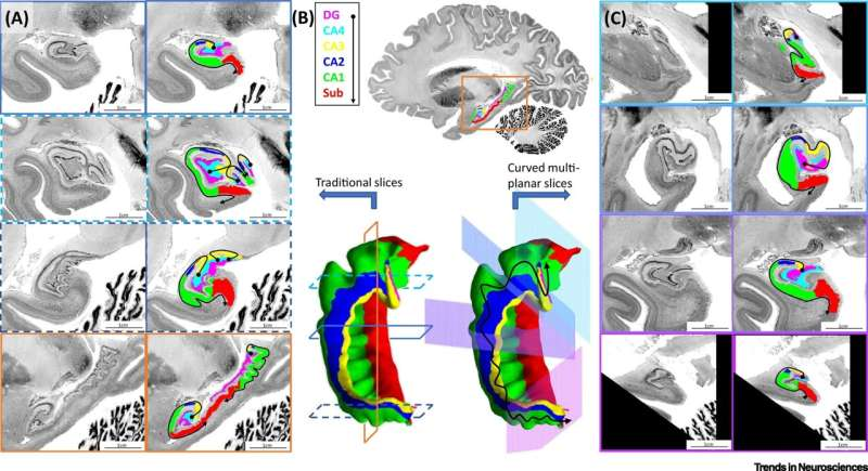 Digitally unfolding the hippocampus to better understand brain disorders