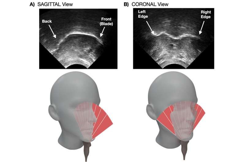 Does visual feedback of our tongues help in speech motor learning?
