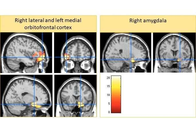 Does 'harsh parenting' lead to smaller brains?