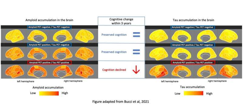 Early accumulation of tau in the brain predicts memory decline in Alzheimer's disease