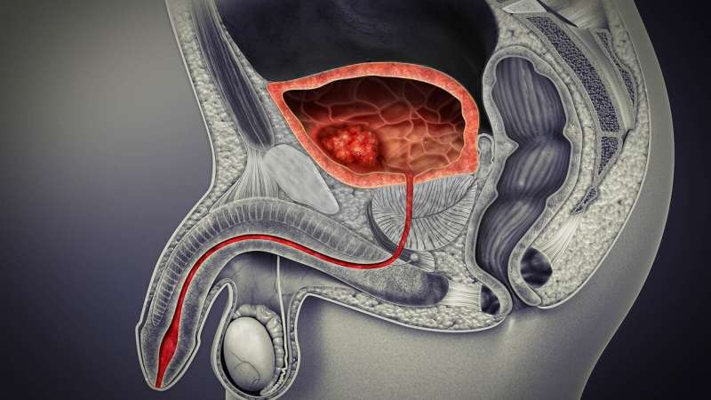 Experimental drug that boosts immunotherapy shows promise in bladder cancer study