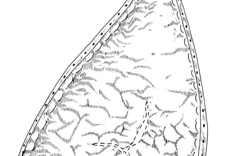 La moda de los zapatos puntiagudos provocó una epidemia de juanetes en la Gran Bretaña medieval
