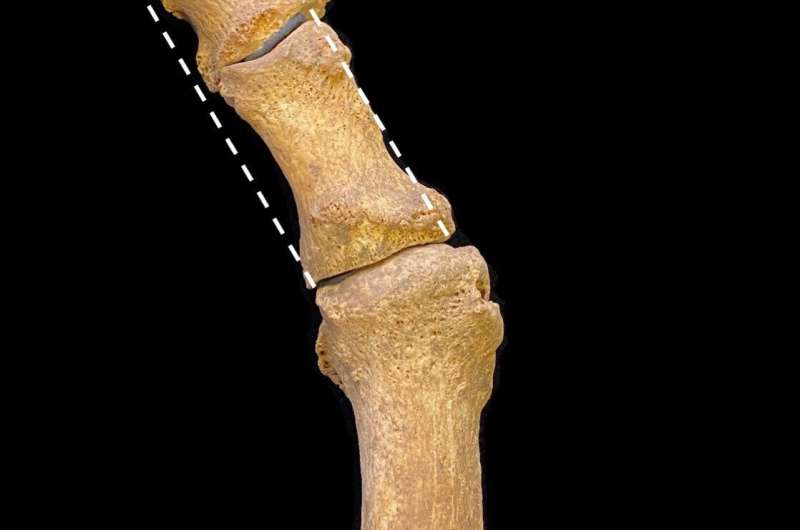 Sharp shoe fashion unleashed a plague of bunions in medieval Britain