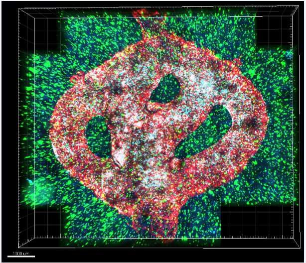 First 3D-bioprinting of entire active tumor
