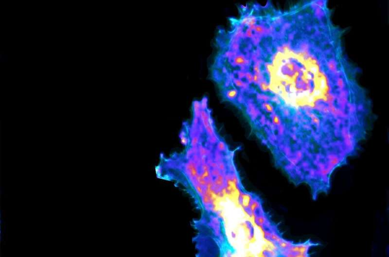 For the first time, researchers visualize metabolic process at the single-cell level