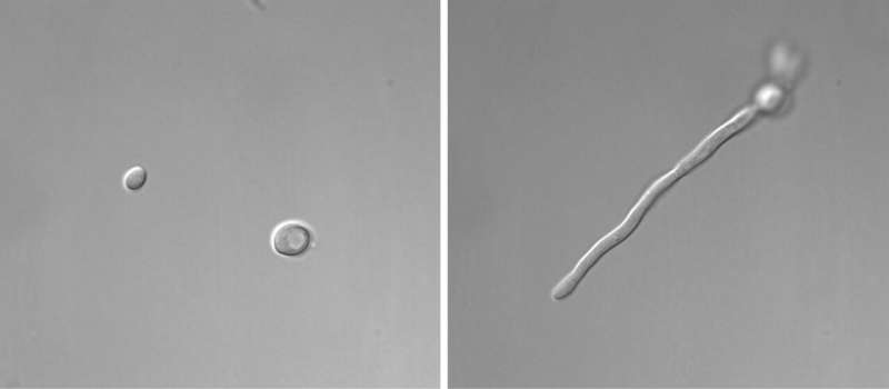 From yeast to hypha: How Candida albicans makes the switch