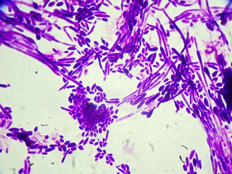 Fungal infections worldwide are becoming resistant to drugs and more deadly