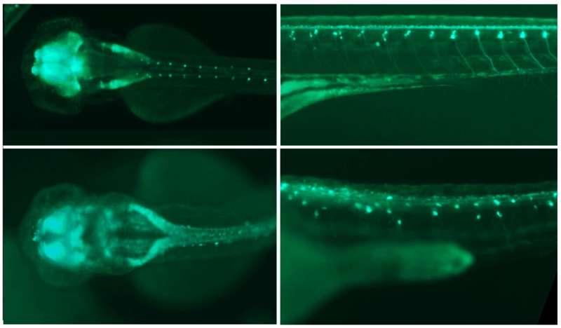 Gene plays major role in brain development