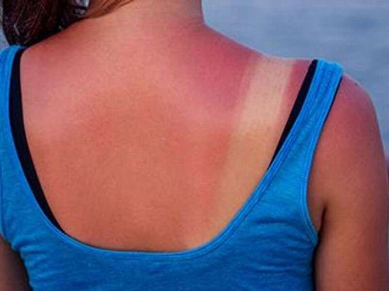 Health care visits for sunburn are rare