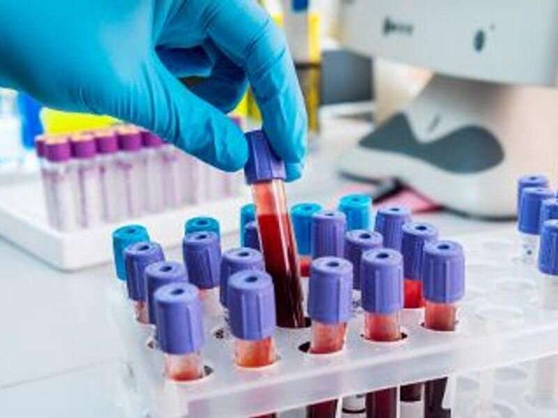 Hepatitis C testing, treatment down during the pandemic