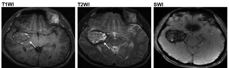 HKUST-Beijing Tiantan Hospital researchers discover a new cause for the cerebral cavernous malformation