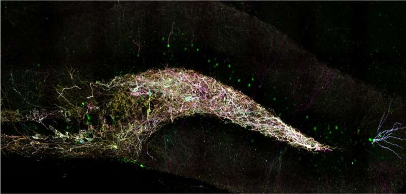 How sleep loss sabotages new memory storage in the hippocampus