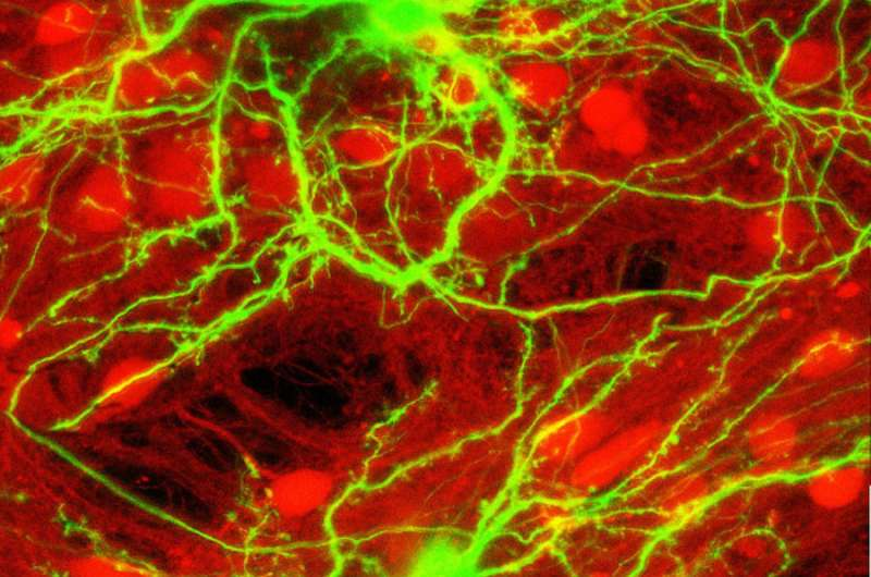How neural circuits achieve a balance between excitation and inhibition