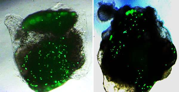 Human lung and brain organoids respond differently to SARS-CoV-2 infection in lab tests