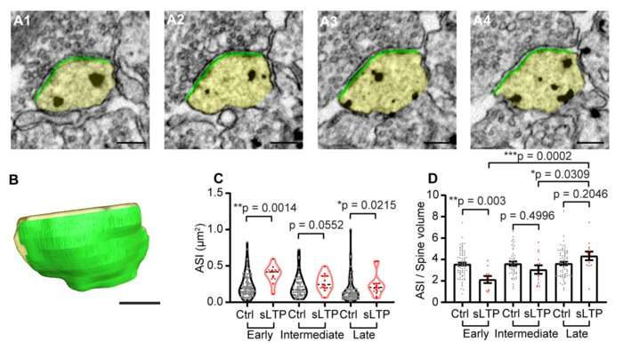 Imaging single spine structural plasticity at the nanoscale level
