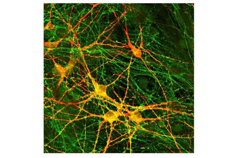 Impairments found in neurons derived from people with schizophrenia and genetic mutation