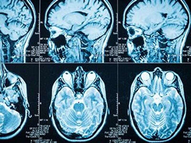 Incidental findings on brain MRI common in children