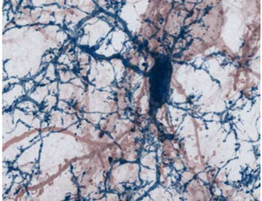 Inflammatory reactions in multiple sclerosis lead to synapse loss in the cerebral cortex