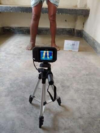 Infrared imaging to detect lymphatic filariasis