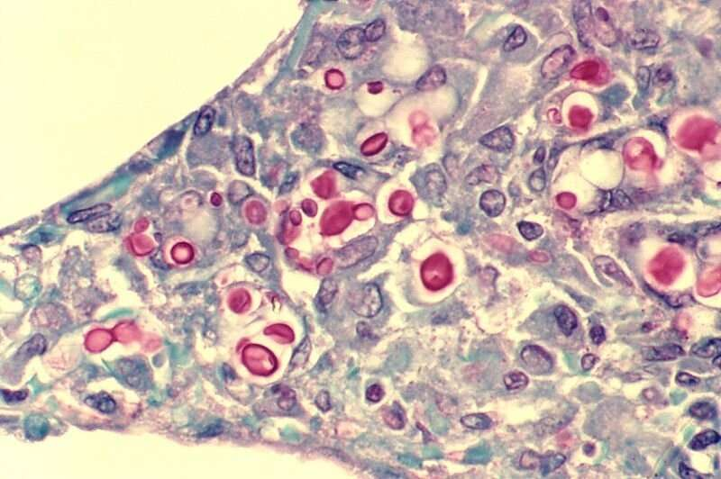 Innovative cancer treatment found to be promising for the control of fungal infections