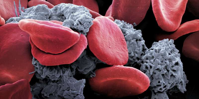 Keep on moving: Sports relieve tumor-associated anemia