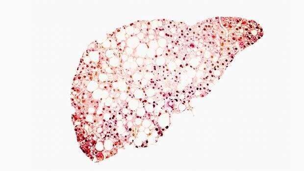 Liver cancer rates in the UK are highest amongst men in Scotland