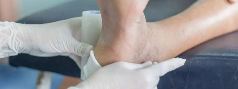 Low-cost rapid sensors used to rapidly detect infections in wounds