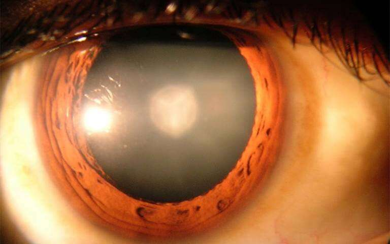 Low to moderate alcohol consumption linked to lower risk of cataracts | UCL News - UCL – University College London