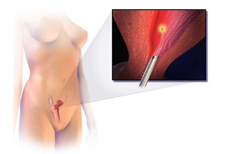 Mayo Clinic Q and A: Endometrial ablation when pelvic pain or endometriosis are present