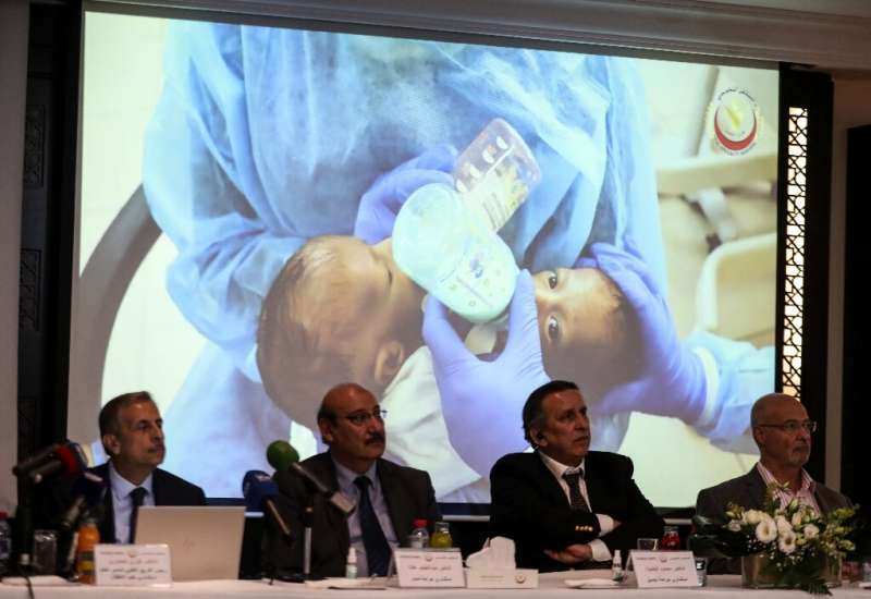 Members of a Jordanian medical team announce having performed a rare eight-hour operation to separate two Yemeni conjoined twins