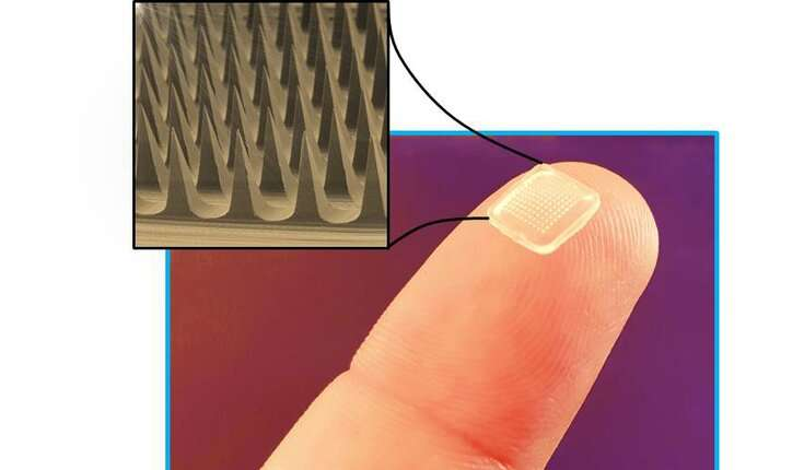 Microneedles are promising devices for painless drug delivery with minimal side effects