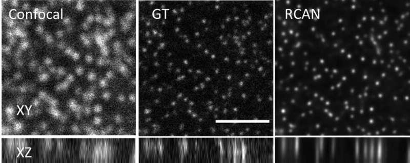 Les microscopistes poussent les réseaux de neurones à la limite pour affiner les images floues
