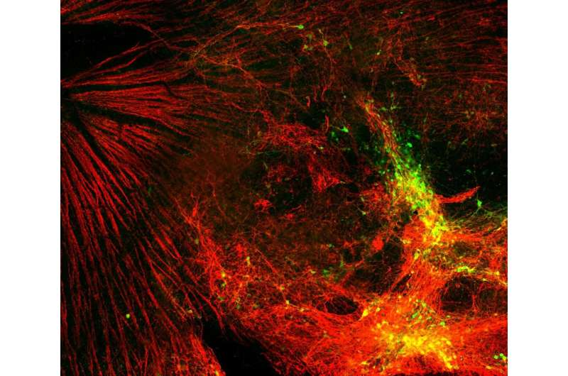 MIPT and Harvard researchers grow stem cells to cure glaucoma