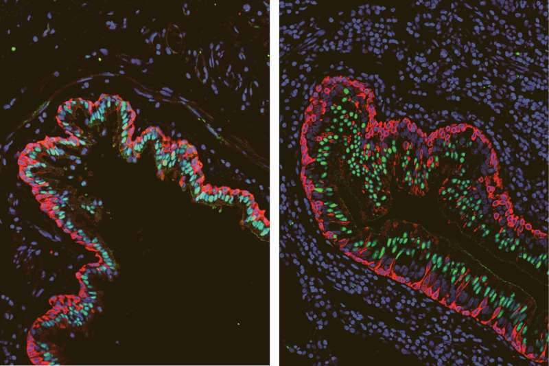 Molecular analysis identifies key differences in lungs of cystic fibrosis patients