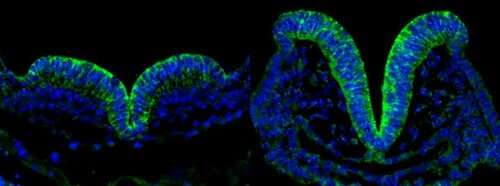 Mothers' diabetes may induce premature aging of neural tissue leading to birth defects