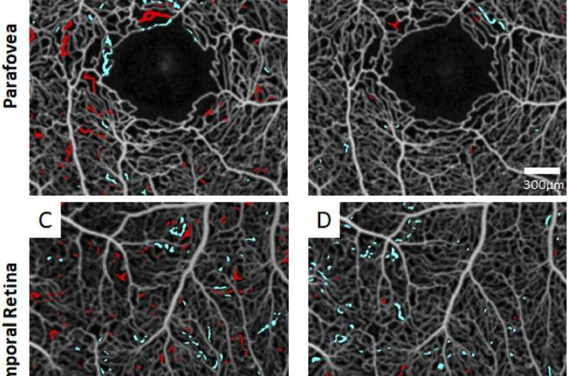 Mount Sinai ophthalmologists develop new technique to assess progression of sickle cell retinopathy