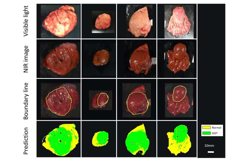 Near-infrared imaging and machine learning can identify hidden tumors