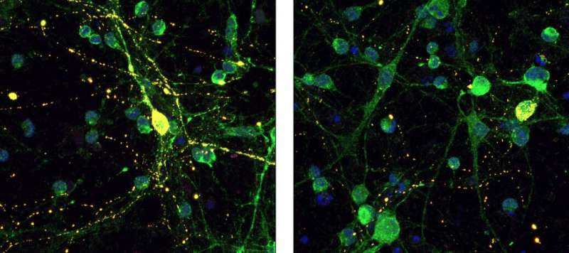 New Alzheimer'sTreatment idea targets tau
