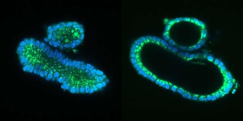New CRISPR/Cas9 technique corrects cystic fibrosis in cultured human stem cells