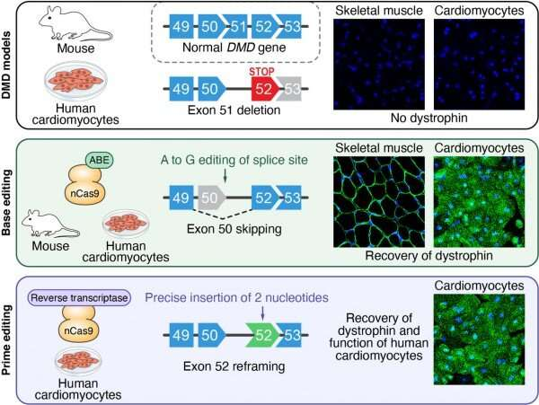 New gene editing strategies developed for duchenne muscular dystrophy